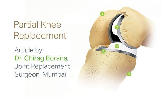Replace Only What is Damaged. Article by Dr. Chirag Borana, Joint Replacement Surgeon Mumbai